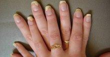Cách chữa trị nấm móng tay tại nhà hiệu quả nhất