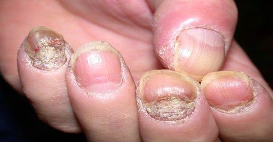Bệnh nấm móng tay gây mất thẩm mỹ