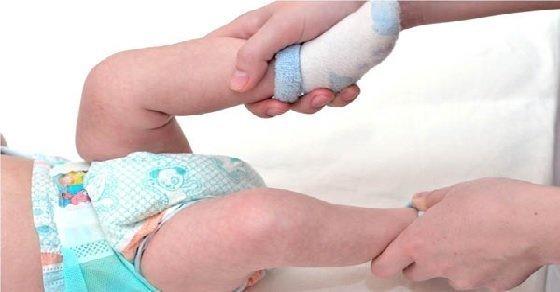 Cách chữa bệnh táo bón cho trẻ sơ sinh