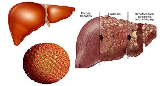 Nguyên nhân và cách chữa trị bệnh viêm gan b